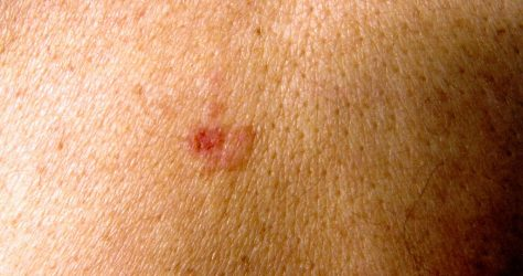 skin-cancer-cc-license-stephanie-young-merzel